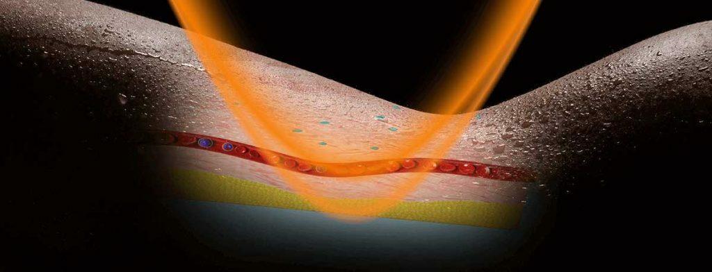 Bőrbe hatoló hullámok